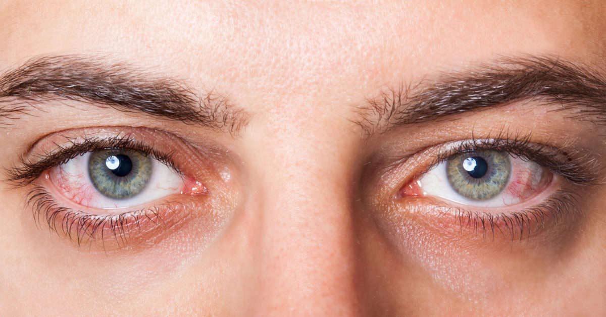 droge geïrriteerde ogen